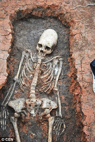 Russian Skeleton With Elongated Head